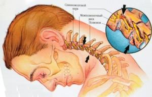 шейная дорсопатия