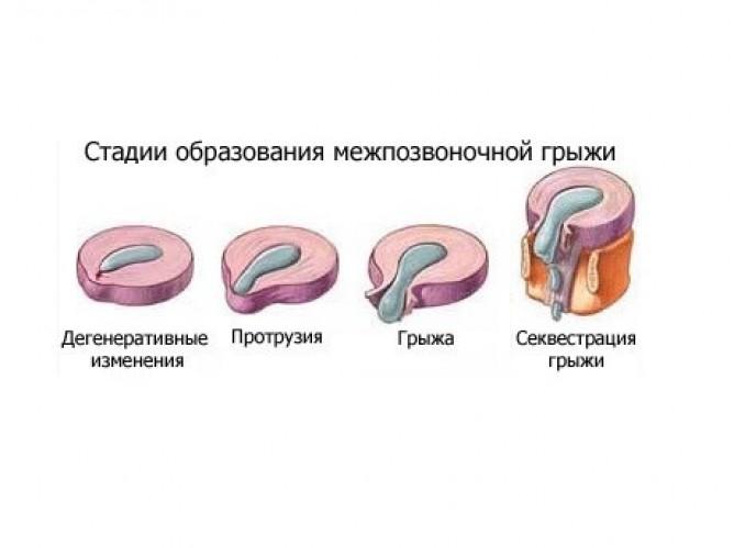 Симптомы поясничной грыжи