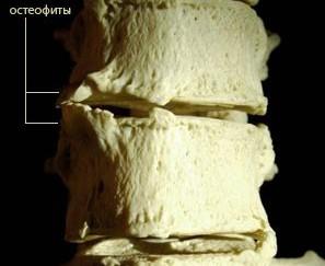 грудной деформирующий спондилез