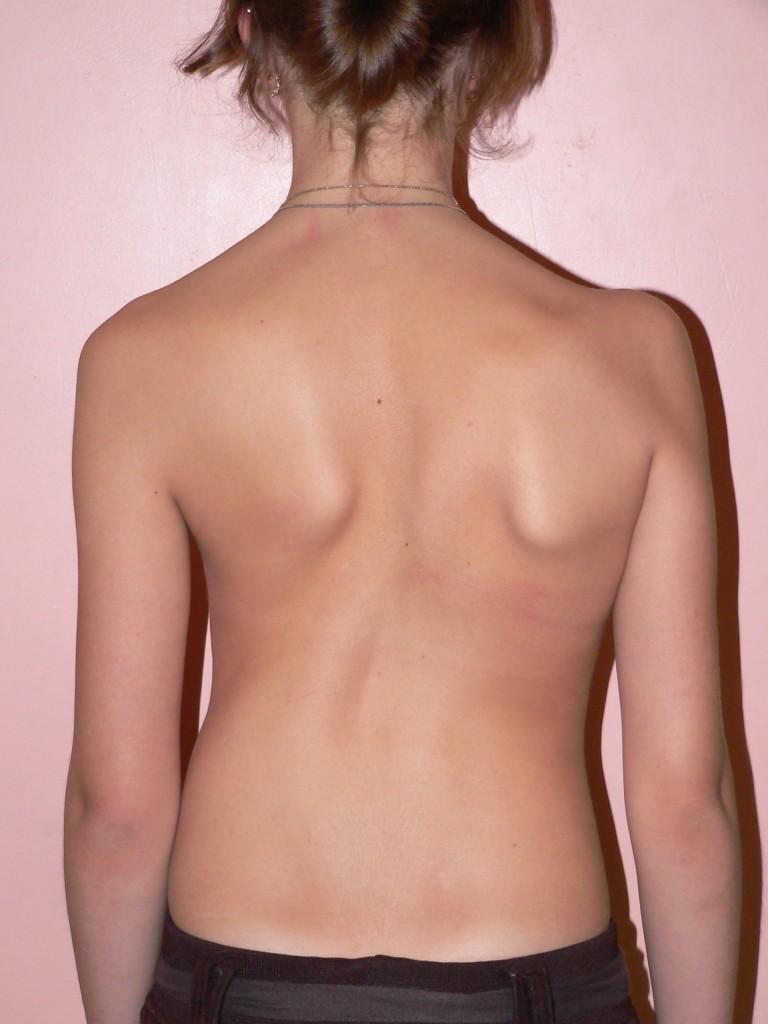 искривление позвоночника фото спины