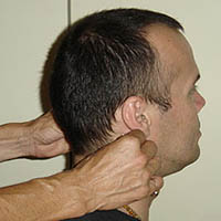 Шейный миозит симптомы лечение