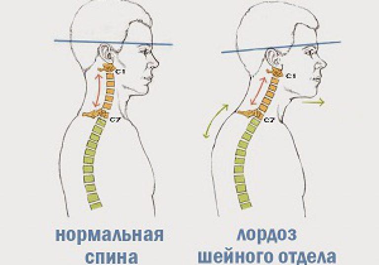 Дискомфорт в желудке при остеохондрозе
