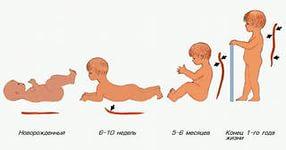 Нарушение осанки у детей дошкольного возраста.