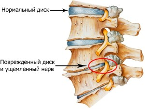 Признаки остеохондроза шейного отдела